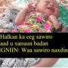 Fadlan caawi wiilkaan yar oo la ildaran xanuun kaga dhacay xubinta taranka.
